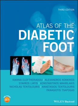 Читать Atlas of the Diabetic Foot - Panagiotis  Tsapogas