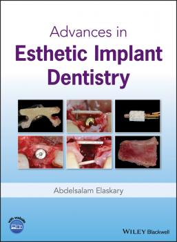 Читать Advances in Esthetic Implant Dentistry - Abdelsalam  Elaskary